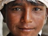 An injured boy manages to smile for the camera PHOTO: MEHEK ASAD