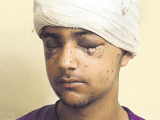 Hamid became a victim of the indiscriminate firing of pellets by the Indian occupation forces, blinding his right eye permanently, while the vision of his left eye remains uncertain. PHOTO: HINDUSTAN TIMES
